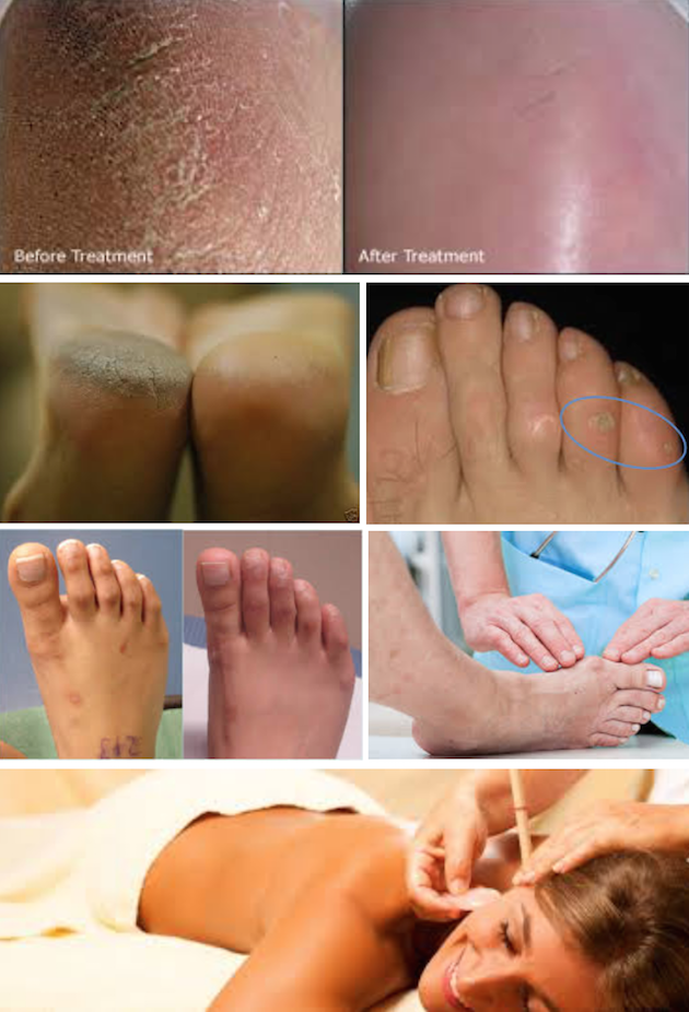 images/advert_images/footcare_files/bev.png