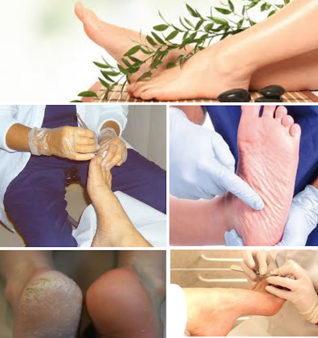 images/advert_images/footcare_files/evergreens feet.png