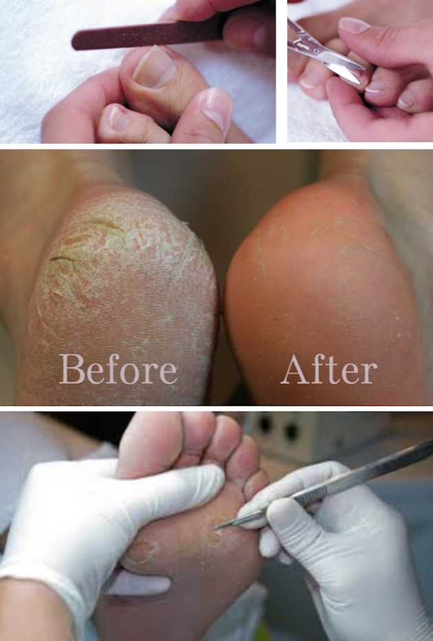 images/advert_images/footcare_files/sharon beddow.png