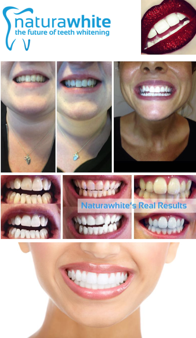 images/advert_images/teeth-whitening_files/love your smile 4.png